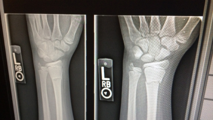 Do You Need an X-Ray? Here's What You Should Know